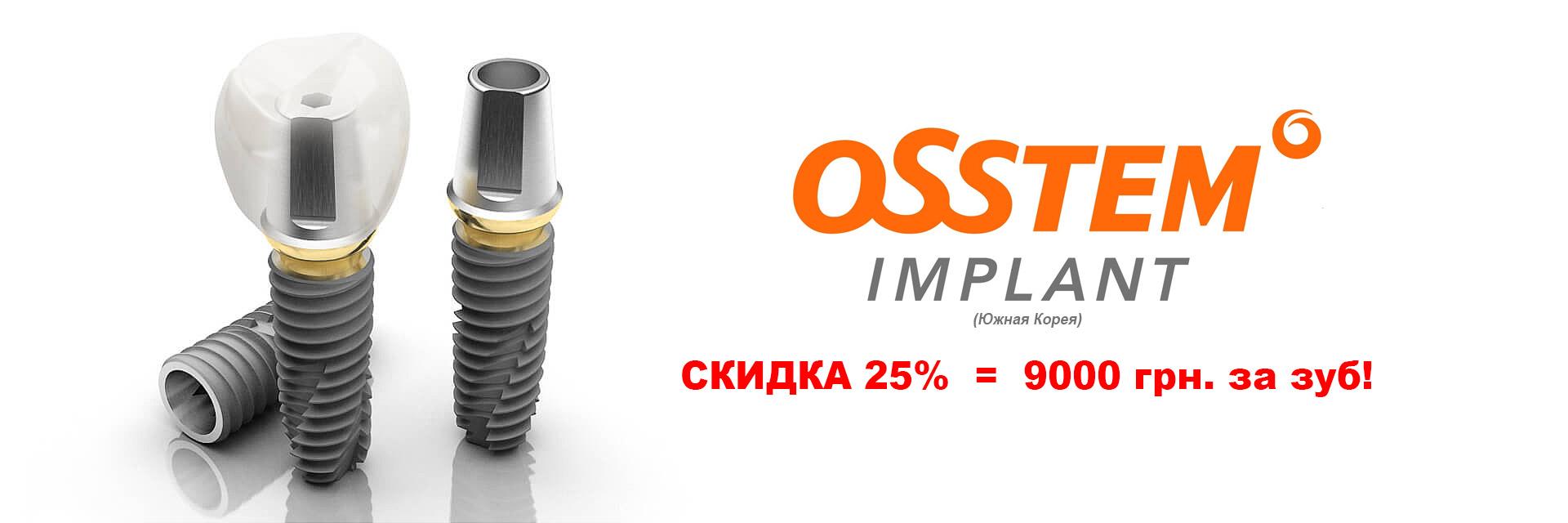Скидка 25% на имплантацию Osstem
